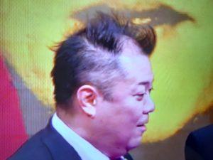 ブラマヨ小杉の髪の毛アップ画像